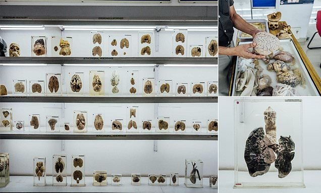 Inside the museum where hundreds of human BRAINS are displayed